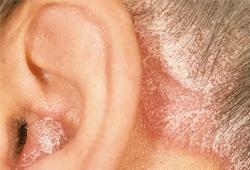 Bệnh nấm da