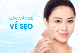 Trị sẹo rỗ Mesotherapy Mix