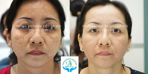 Kết quả sau 6 buổi điều trị Sạm da, nám đốm và tàn nhang của chị Thủy (Hà Đông, Hà Nội)
