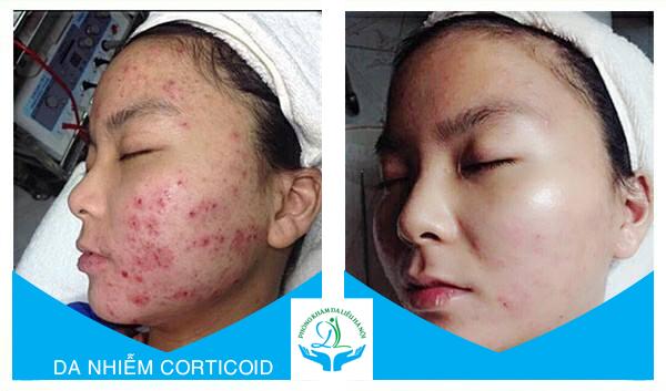 Phòng khám chuyên xử lý những ca nhiễm Corticoid do sử dụng sản phẩm không rõ nguồn gốc