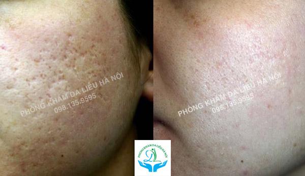 Kết quả sau 3 buổi điều trị Cấy sẹo sinh học Mesotherapy Mix