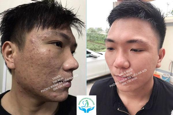 Kết quả sau 6 buổi điều trị mụn