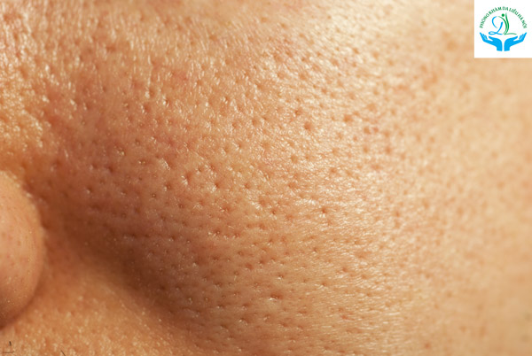 Phương pháp Phi kim (vi kim) kết hợp tế bào gốc chỉ hiệu quả đối với trường hợp lỗ chân lông to, sẹo rỗ mức độ nhẹ và mới xuất hiện