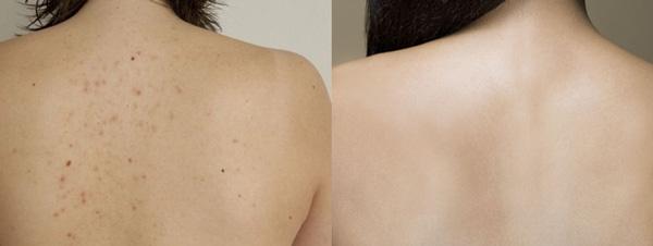 Kết quả sau 4 buổi điều trị mụn ở lưng