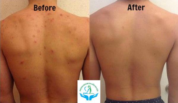 Kết quả sau 6 buổi điều trị mụn vùng lưng