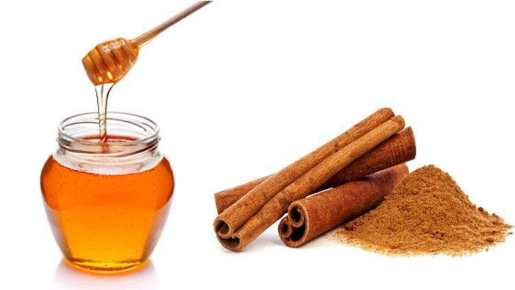 Chữa mụn lưng bằng hỗn hợp quế và mật ong