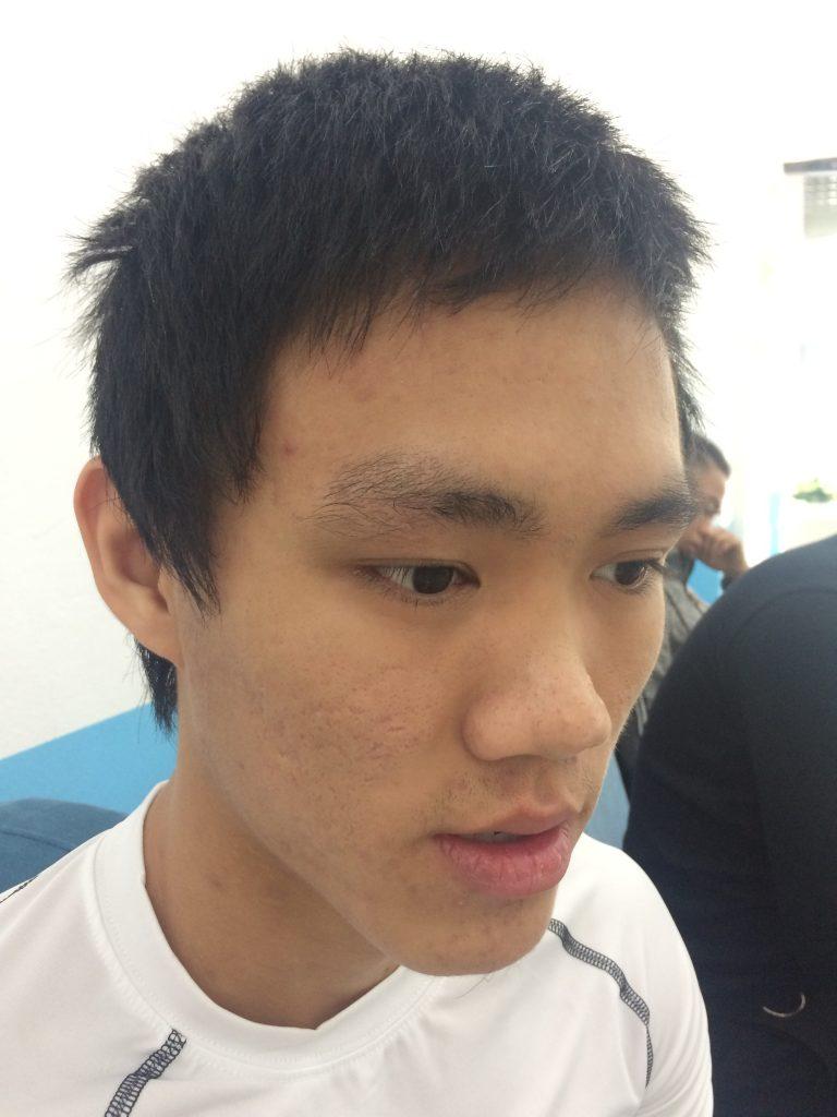 Kết quả khách hàng sau buổi đầu điều trị mụn tại Phòng khám da liễu Hà Nội