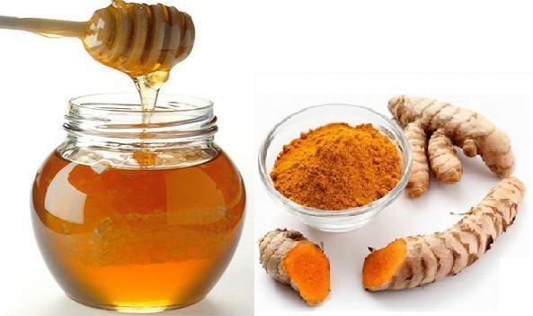 Trị sẹo bằng mật ong và bột nghệ