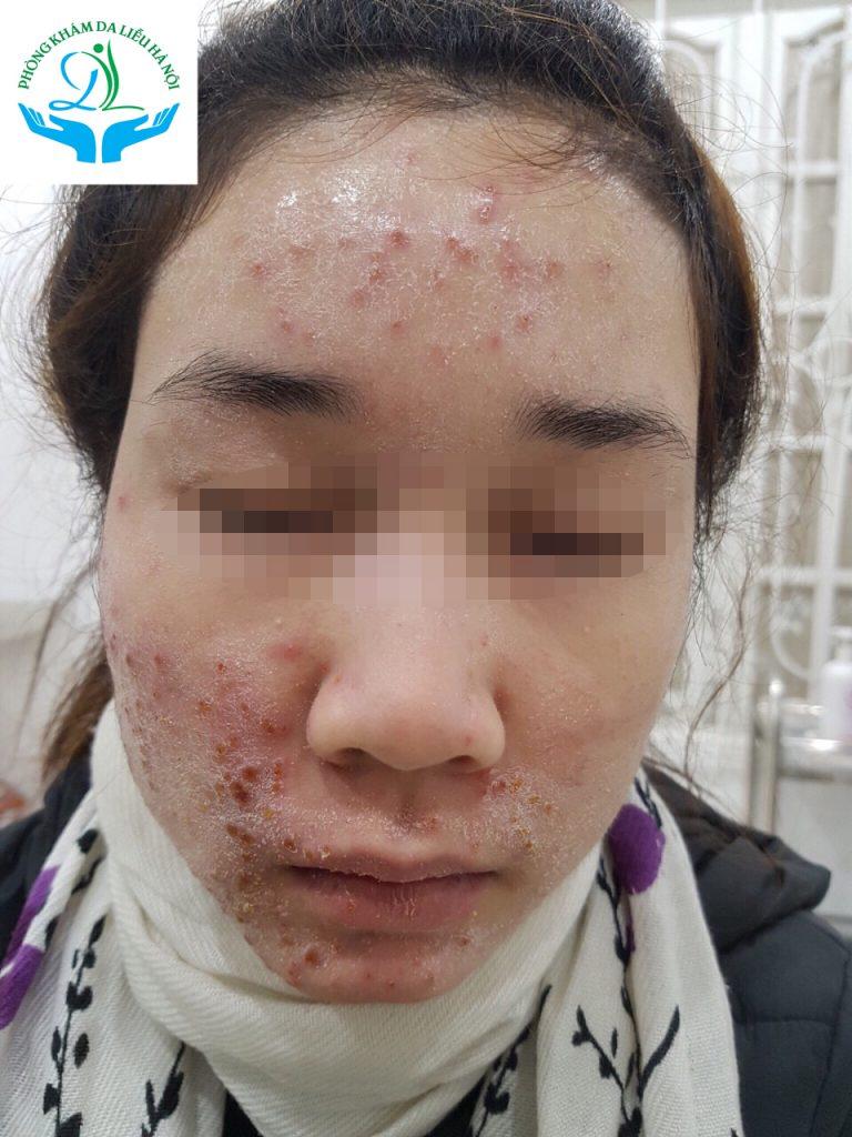 Da tổn thương do dùng mỹ phẩm có chứa Corticoid