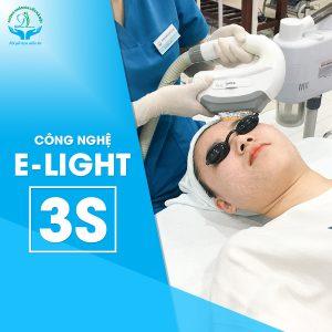 Công nghệ E_Light 3s trị mụn tận gốc