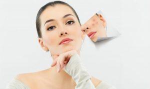Điều trị Sẹo hiệu quả và an toàn