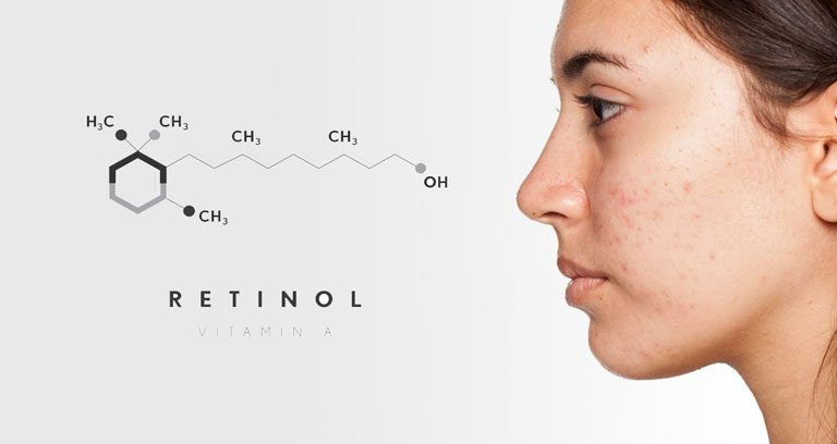 retinol – tác dụng với các tùy chọn điều trị như thế nào