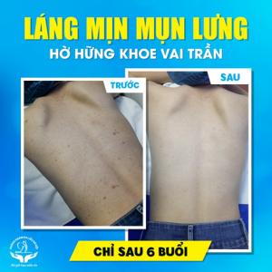 Điều trị mụn viêm vùng Lưng tại Phòng khám da liễu Hà Nội