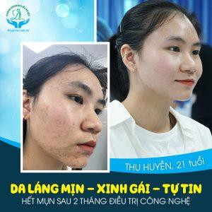 Kết quả khách hàng sau khi sử dụng dịch vụ điều trị mụn tại Phòng khám da liễu Hà Nội