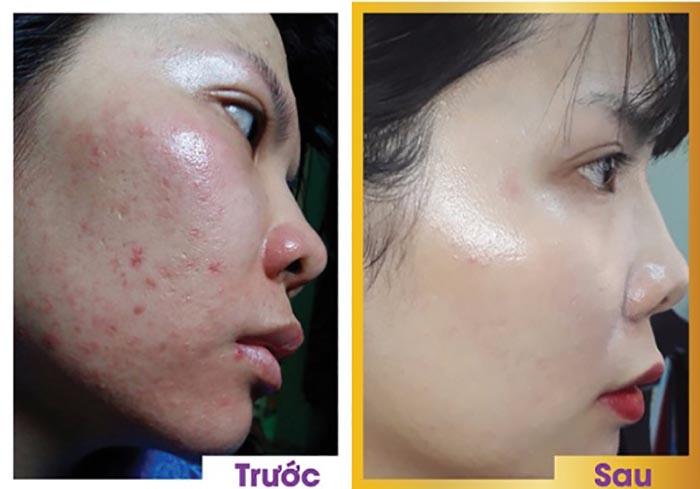 Những cách trị sẹo rỗ trên mặt an toàn và hiệu quả